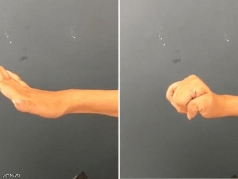 لأول مرة.. جراحة تعيد وظائف اليد والذراع للمصابين بالشلل