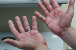 أمريكية تحرق يدي ابنها لأنه باع مخدراتها