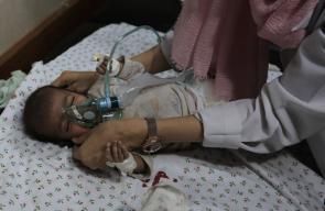 شهداء ومصابي مجزرة الاحتلال بحق عائلة أبو ملحوس بدير البلح