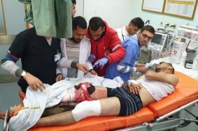 شهيد باستهداف الاحتلال مجموعة من المواطنين