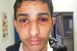 الاحتلال يُنكل بأسير من بيت لحم أثناء اعتقاله