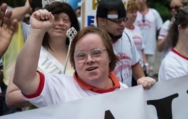 متلازمة داون هي الحالة الوراثية الأكثر شيوعا التي يتم تشخيصها في الولايات المتحدة كل عام