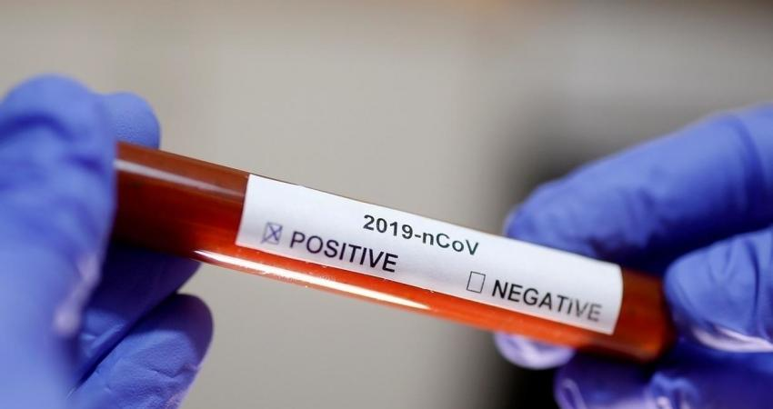FILE PHOTO Test tube with Corona virus name label is seen in this illustration taken on January 29, 2020. REUTERS OK (1)