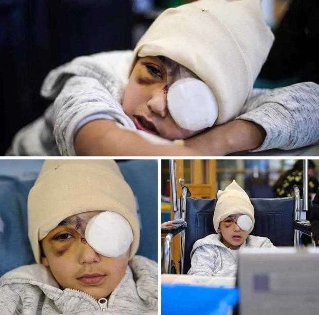 استئصال عين طفل أصيب برصاص الاحتلال في القدس