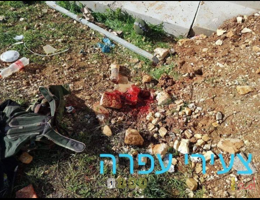 قـ7 تزعم: إصابة جندي إسرئيلي بحالة حرجة إثر رشقه بحجر