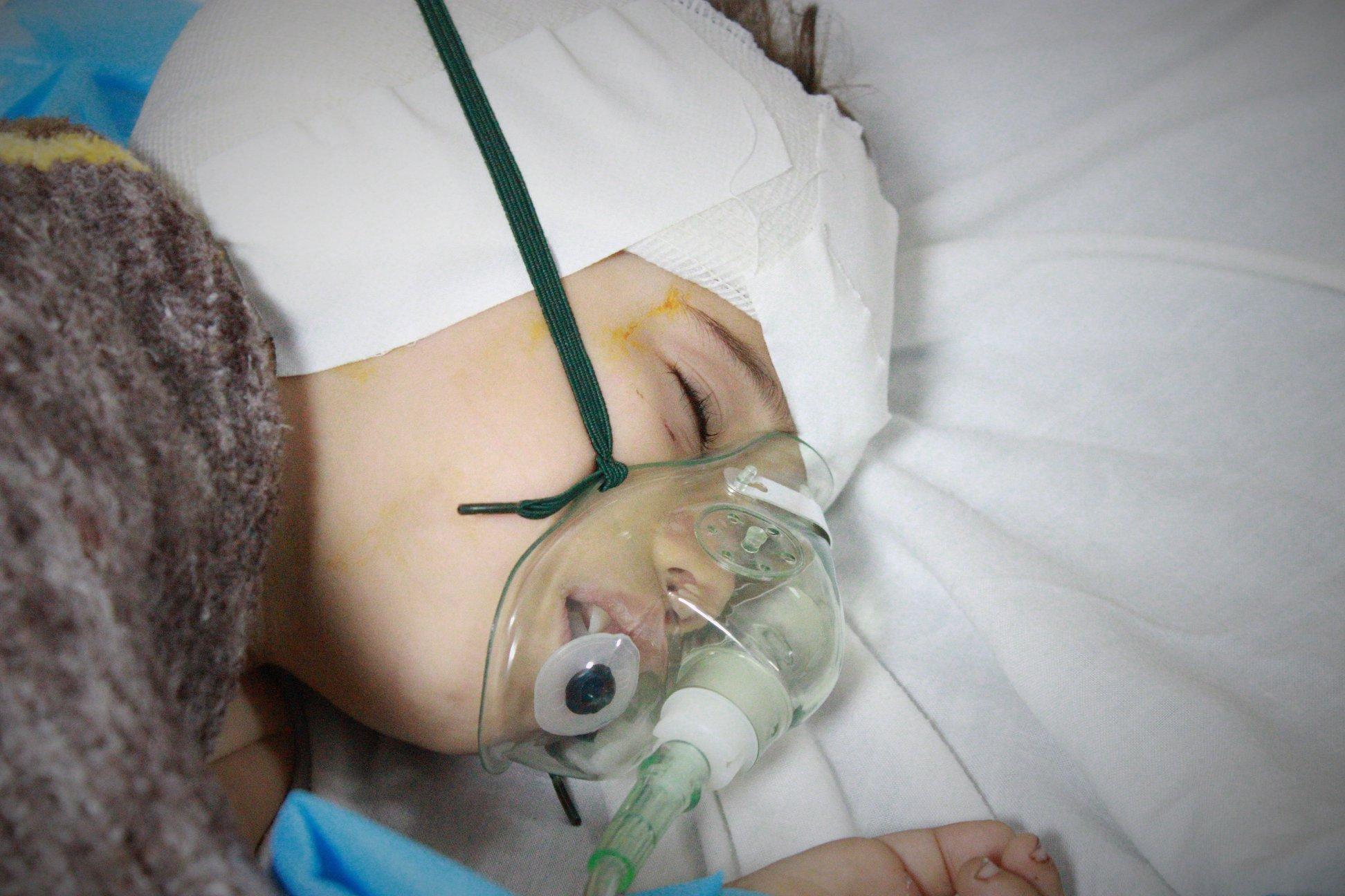 وفد طبي قطري بغزة يجري عمليات زراعة قوقعة لـ24 طفل