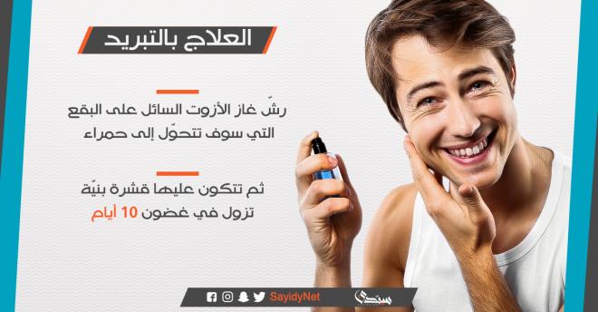 كيف تتخلص من البقع البنية في الصيف على بشرتك؟